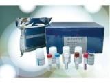 大鼠白蛋白(ALB)ELISA试剂盒