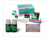 破伤风IgG抗体(Tetanus IgG)ELISA试剂盒