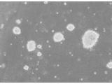 阪崎肠杆菌