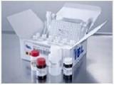 兔血管紧张素Ⅱ(ANGⅡ)检测试剂盒