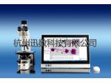迅數MCN S5紅細胞微核智能分析系統