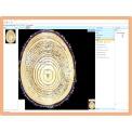 RingAnalysis專業年輪分析軟件