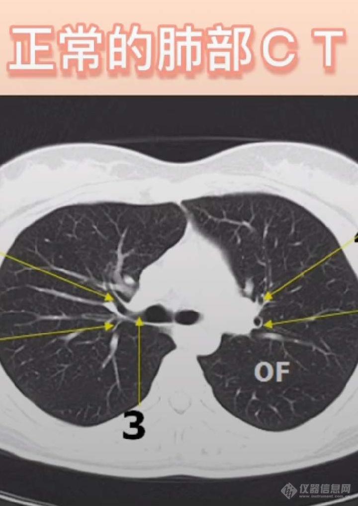 中科大一附院医生视频解析新冠肺炎CT图像.jpg